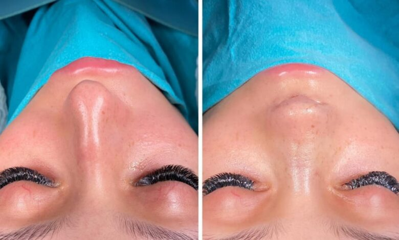Photo of Get Long-Lasting Lash Extensions Kit Easily Online!