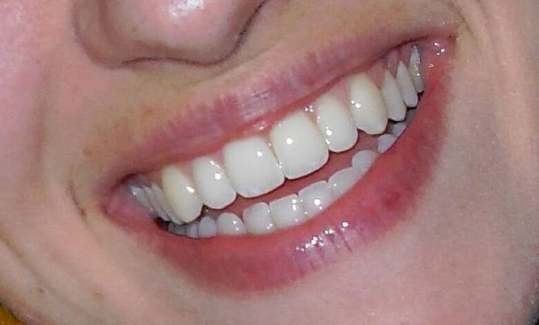 Photo of THE BENEFITS OF PROFESSIONAL TEETH WHITENING